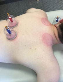 asfca cupping